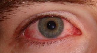 Как избавиться от красных сосудов в глазах