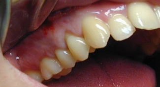 What to do when swollen gums