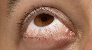 Почему лопаются капилляры в глазах