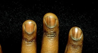 Why blacken nails