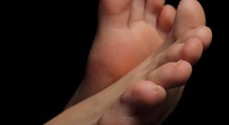 Что делать с вросшим ногтем на ноге
