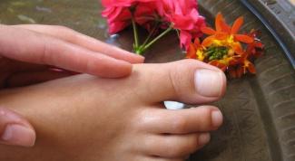 Что делать с вросшим ногтем