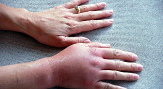 Why swollen hands