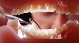 Что делать, если болит челюсть