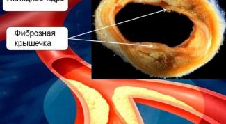 Что такое атеросклероз сосудов