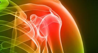 Что делать при артрите суставов