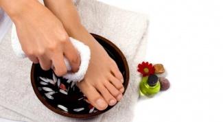 Как лечить отечность ног