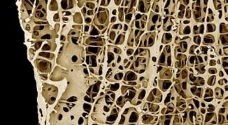 Как восстановить костную ткань