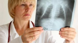 Как вылечиться от пневмонии