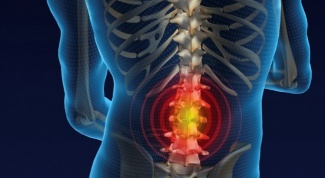 How to treat a hernia of the spine