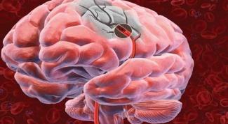 Как диагностировать инсульт мозга