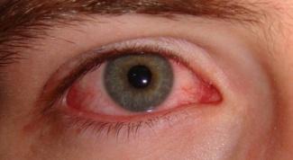Как лечить аллергический коньюктивит