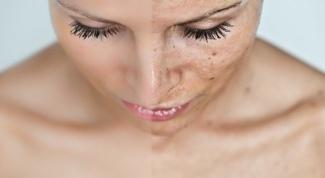 Как лечить лишай на лице
