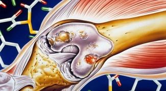 Как проводить лечение артроза