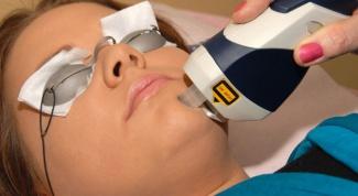Как подготовиться к лазерной шлифовке лица