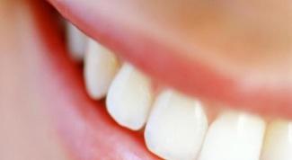Как удалить налет на зубах