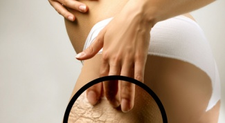How to get rid of stretch marks on buttocks
