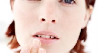 Как лечить стоматит у взрослого