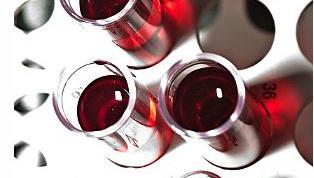 Как понизить билирубин крови