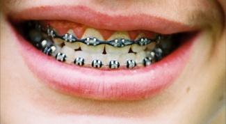 Как убрать щели между зубами