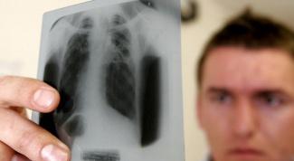 Как узнать, есть ли у меня туберкулез
