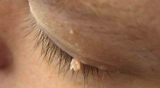 Как удалить бородавки на лице
