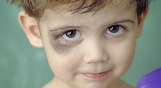 How to cure a black eye