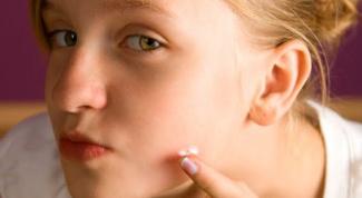 Как избавиться от прыщей и угрей на лице
