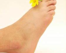 Как убрать натоптыши на ногах