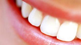 Как сделать зубы красивыми