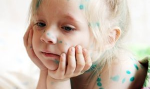 How to recognize chickenpox