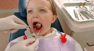 Как лечить молочные зубы