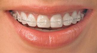 Как выправить зубы