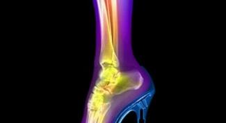 Как лечить трещину кости