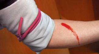 How to stop arterial bleeding