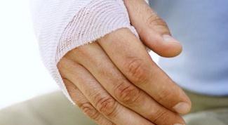 Как определить перелом руки