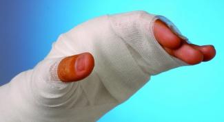 Как лечить ожог кожи