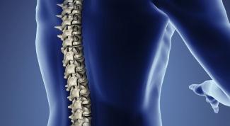 Как лечить остеохондроз народными средствами