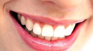 Как лечить зубной камень