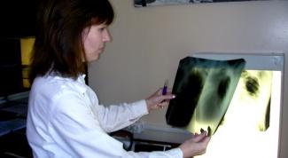 Туберкулез: как распознать первые признаки