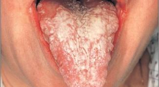 Как лечить кандидоз рта