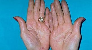 Как лечить контактный дерматит