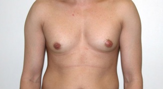 Как уменьшить грудь у мужчин