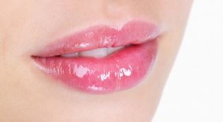 Как лечить кандидоз полости рта