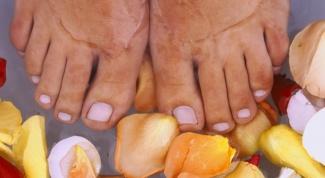 Как лечить косточки у большого пальца ноги