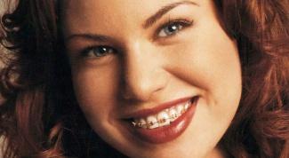 How to fix gaps between teeth