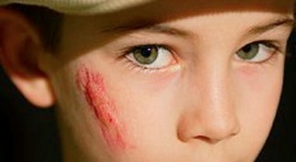 Как заживить шрам