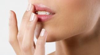 Как лечить герпес во рту