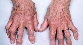 Как лечить шишки на руках