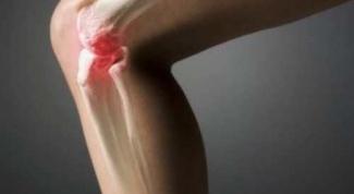 Как вылечить остеоартроз